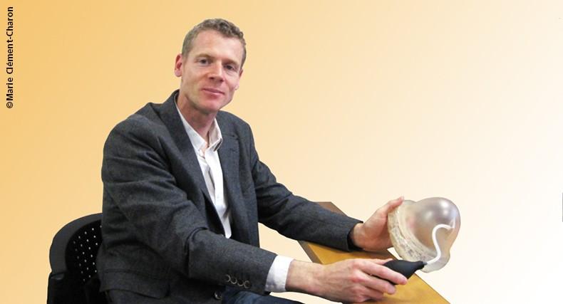 Cancer : une technique innovante de reconstruction mammaire sans prothèse