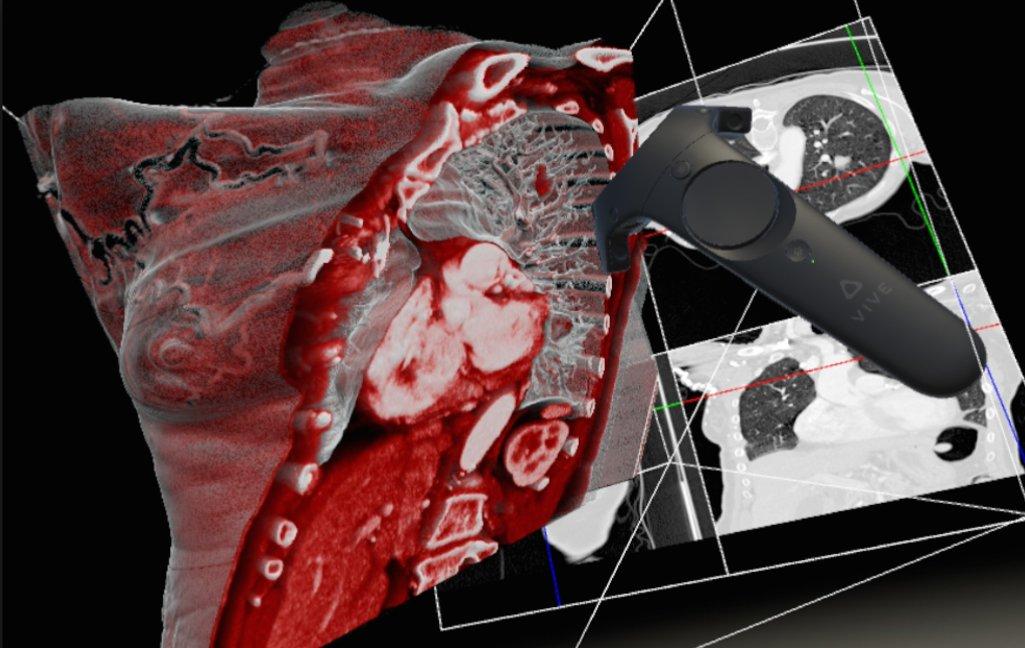 Le logiciel Diva facilite l'analyse d'images médicales grâce à la réalité virtuelle