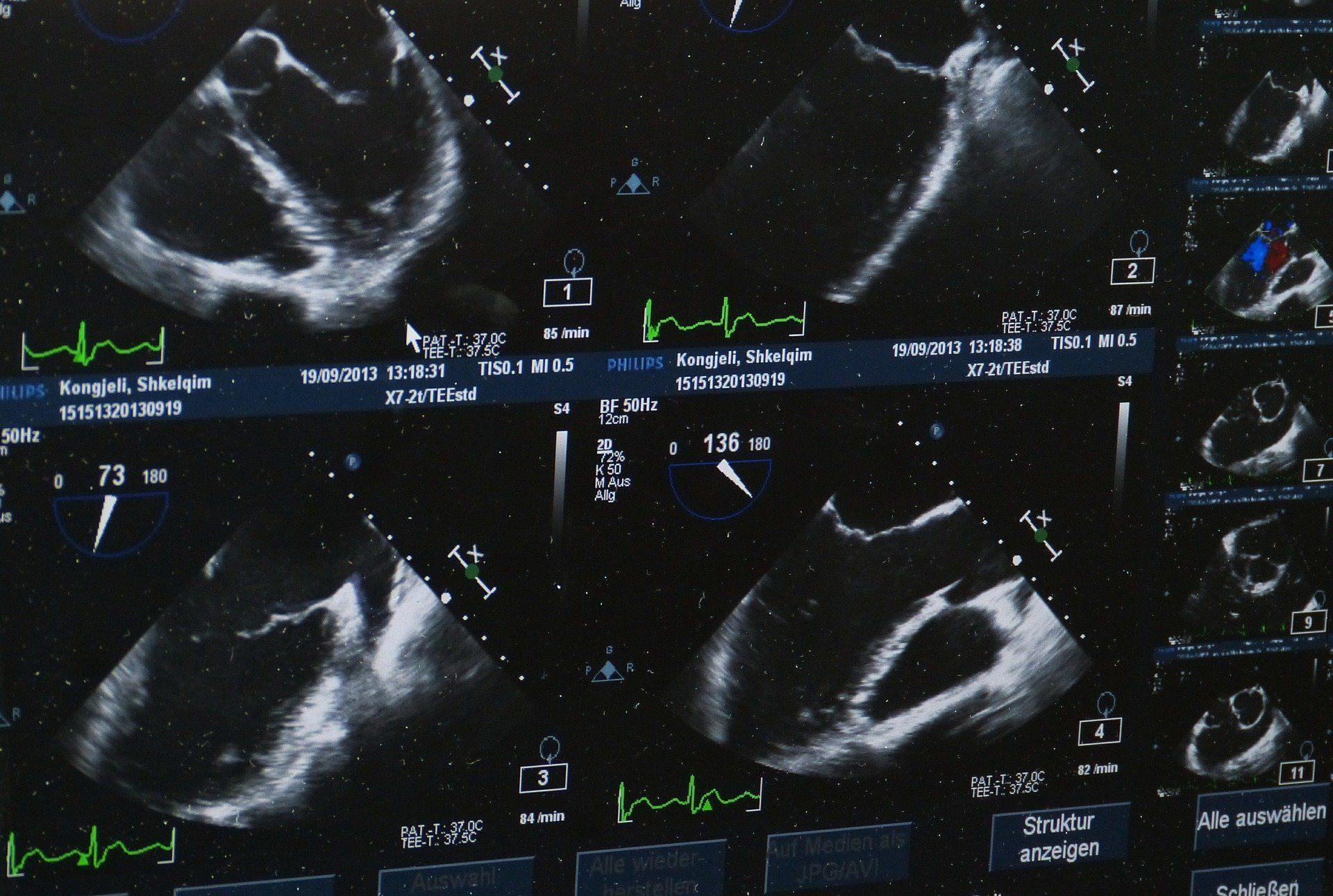 Le CHU de Bordeaux et Deski démocratisent l'échographie via l'IA