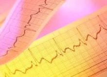 Bientôt un électrocardiogramme dopé à l'intelligence artificielle